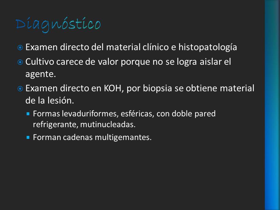 Diagnóstico Examen directo del material clínico e histopatología