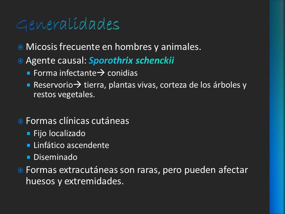 Generalidades Micosis frecuente en hombres y animales.