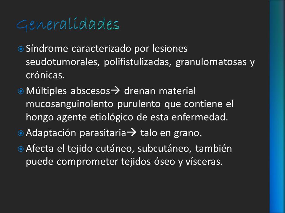 Generalidades Síndrome caracterizado por lesiones seudotumorales, polifistulizadas, granulomatosas y crónicas.
