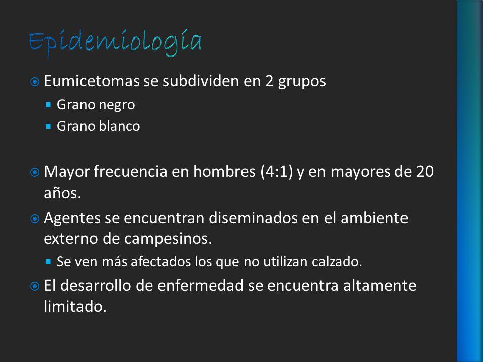 Epidemiología Eumicetomas se subdividen en 2 grupos