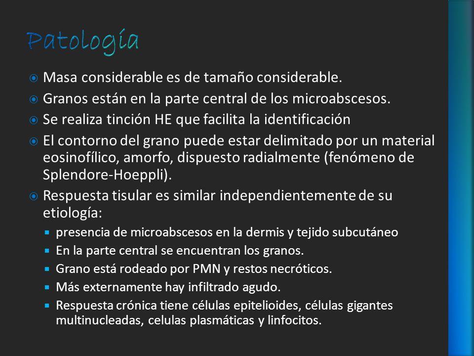Patología Masa considerable es de tamaño considerable.