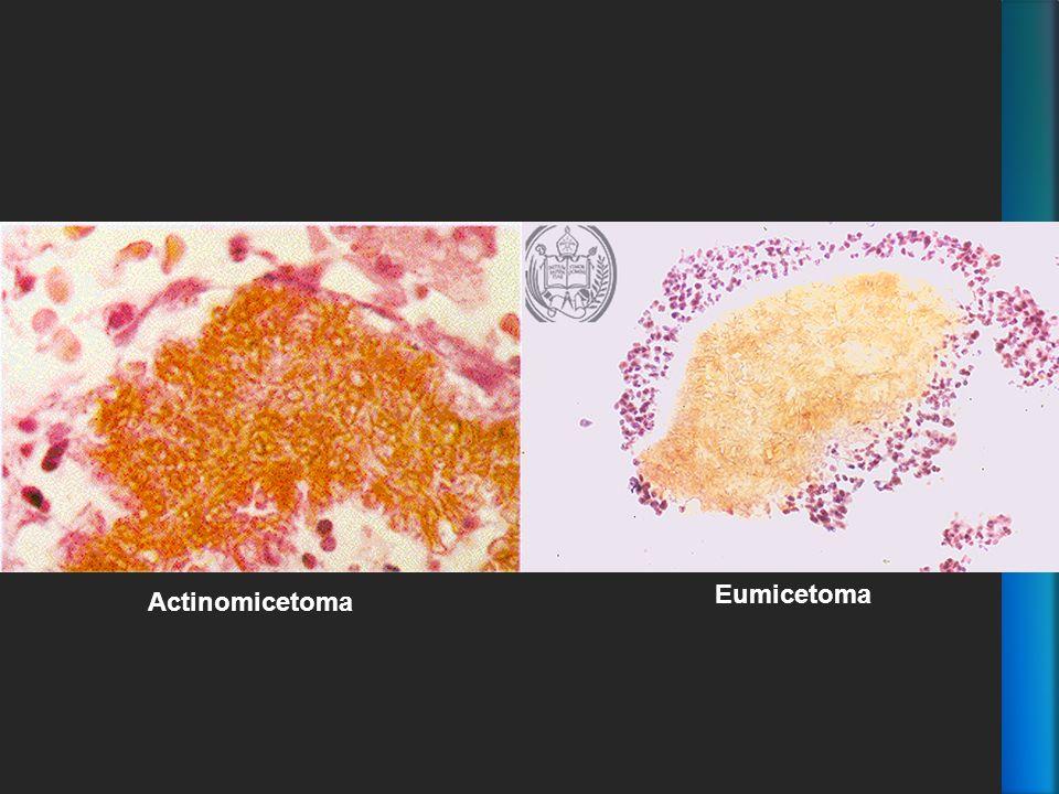 Eumicetoma Actinomicetoma