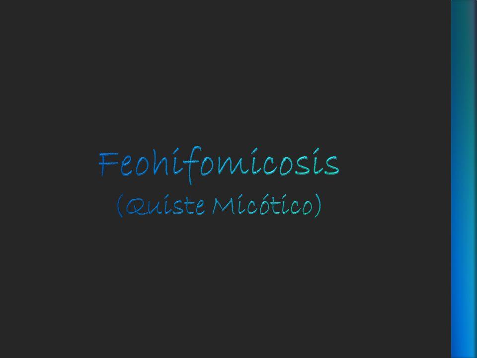 Feohifomicosis (Quiste Micótico)