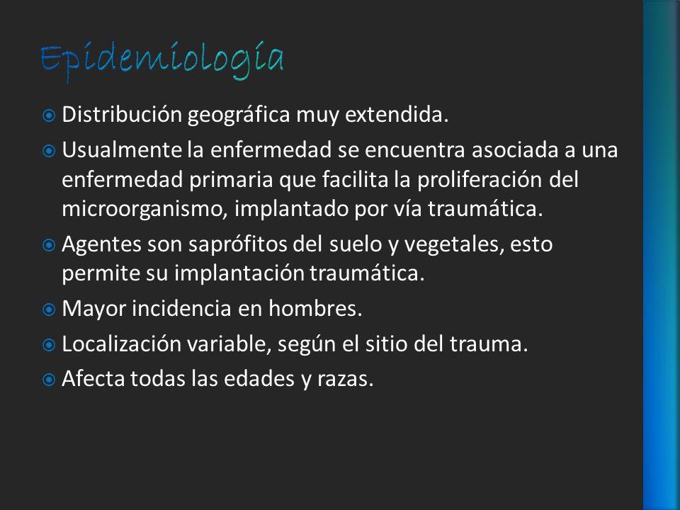 Epidemiología Distribución geográfica muy extendida.