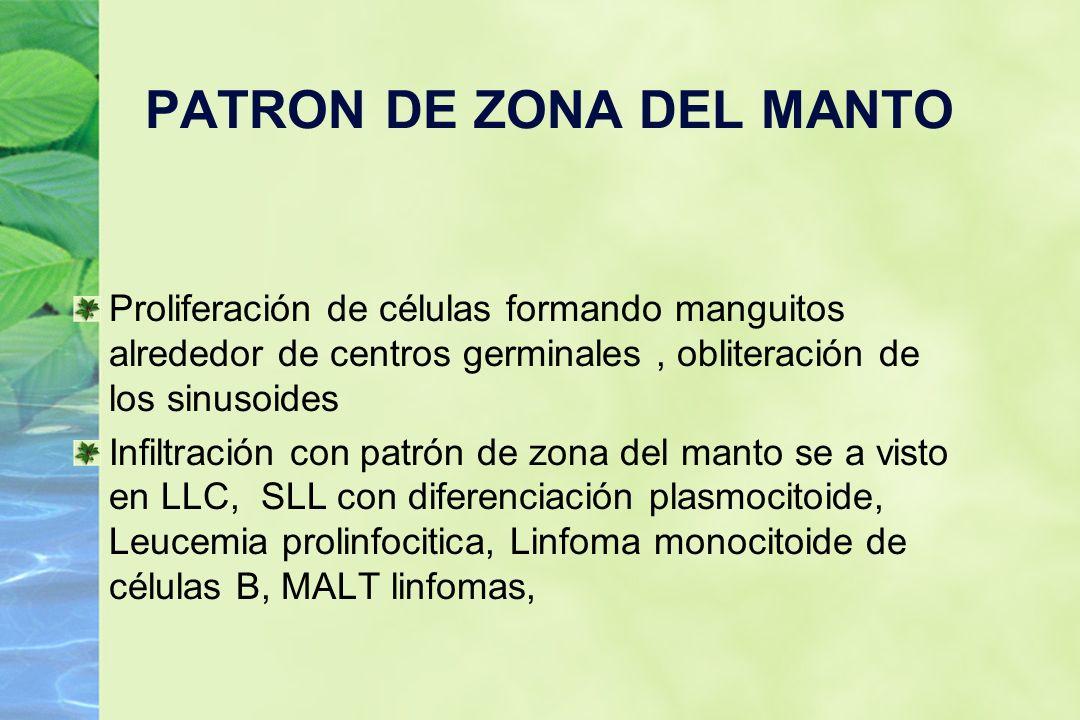 PATRON DE ZONA DEL MANTO