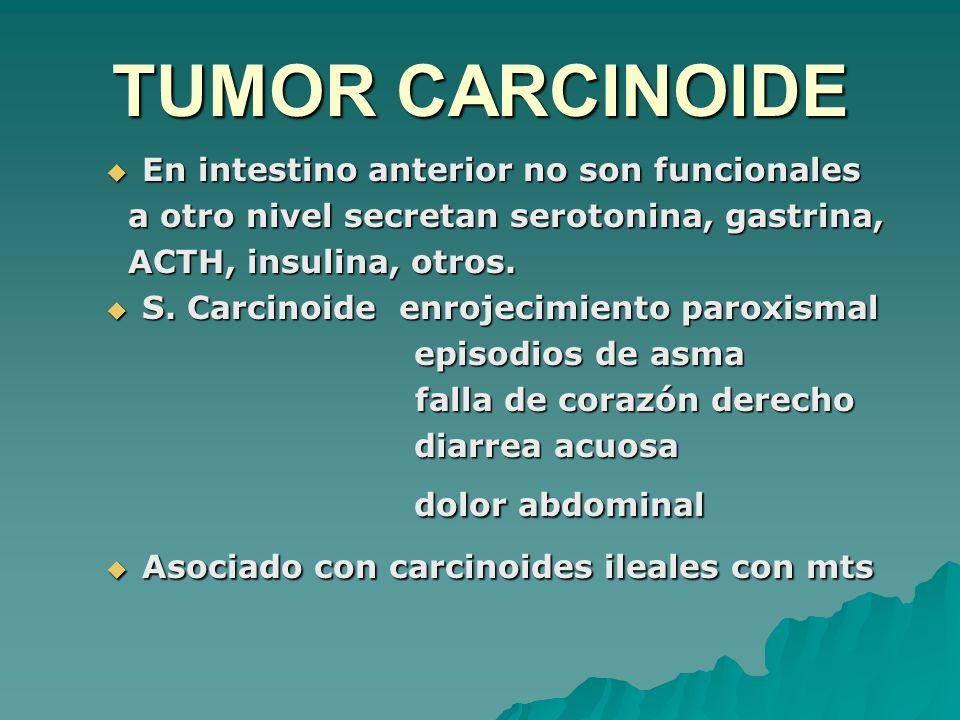 TUMOR CARCINOIDE dolor abdominal
