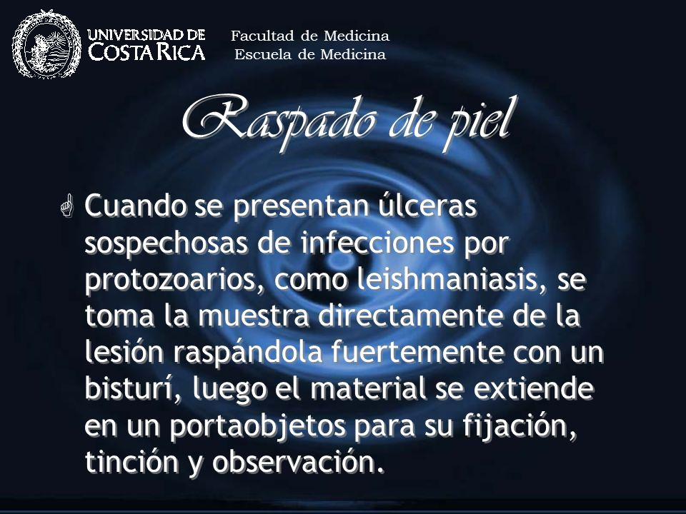 Facultad de MedicinaEscuela de Medicina. Raspado de piel.