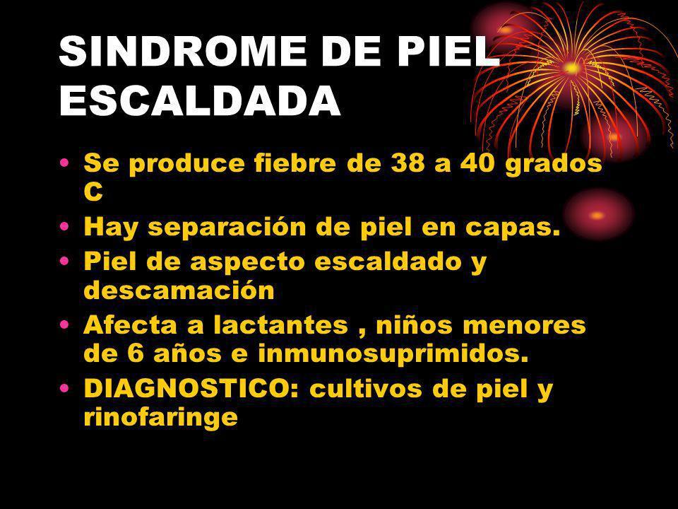 SINDROME DE PIEL ESCALDADA