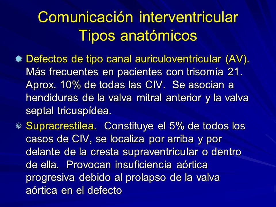 Comunicación interventricular Tipos anatómicos