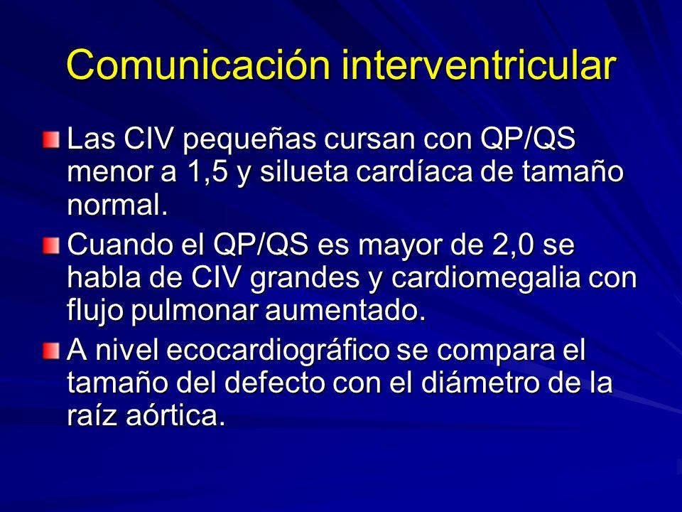 Comunicación interventricular