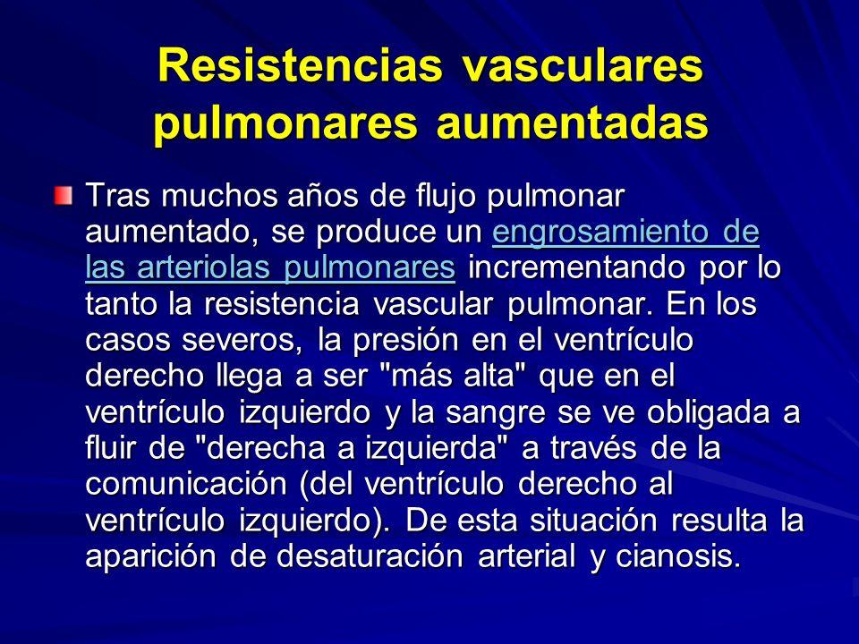 Resistencias vasculares pulmonares aumentadas