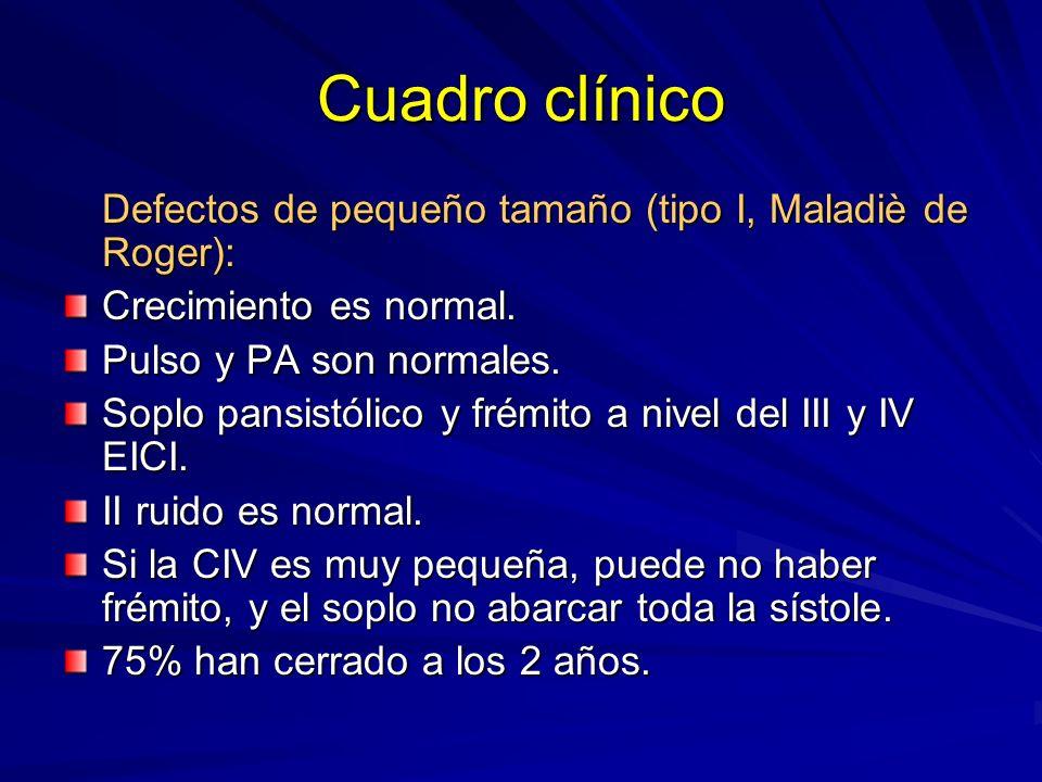 Cuadro clínico Defectos de pequeño tamaño (tipo I, Maladiè de Roger):