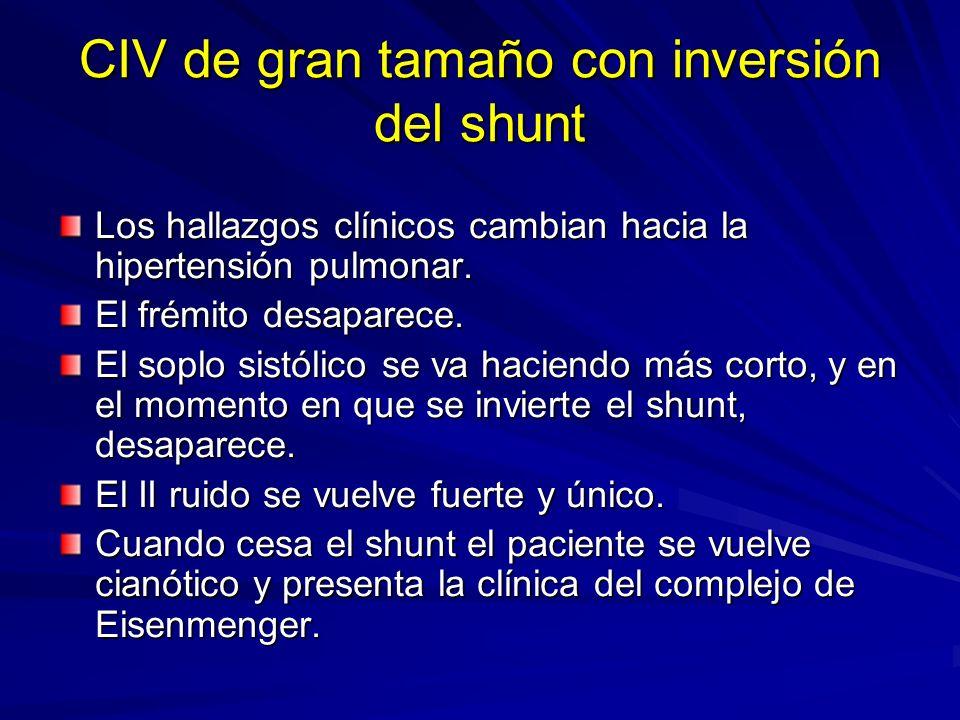 CIV de gran tamaño con inversión del shunt