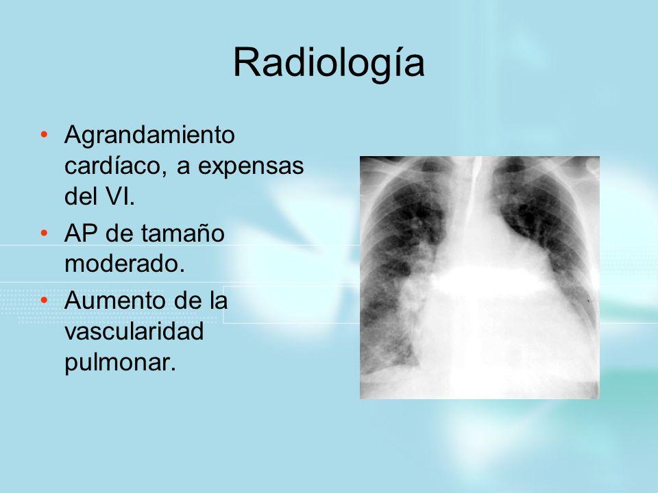 Radiología Agrandamiento cardíaco, a expensas del VI.