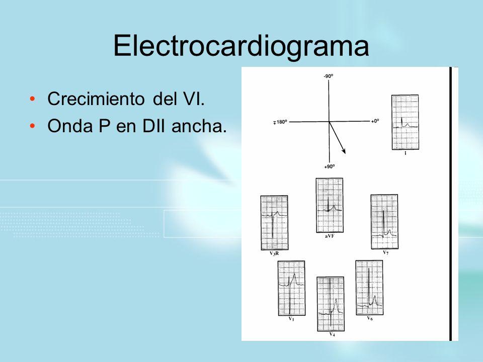 Electrocardiograma Crecimiento del VI. Onda P en DII ancha.