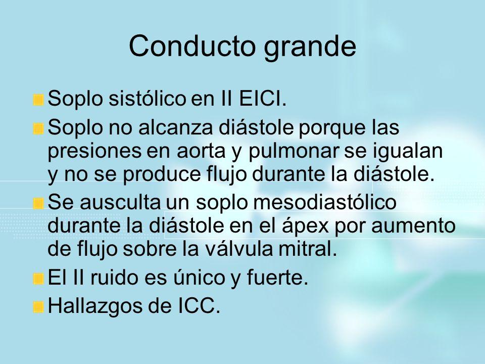 Conducto grande Soplo sistólico en II EICI.