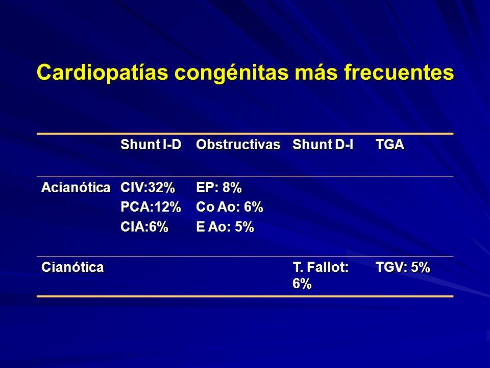 Cardiopatías congénitas más frecuentes