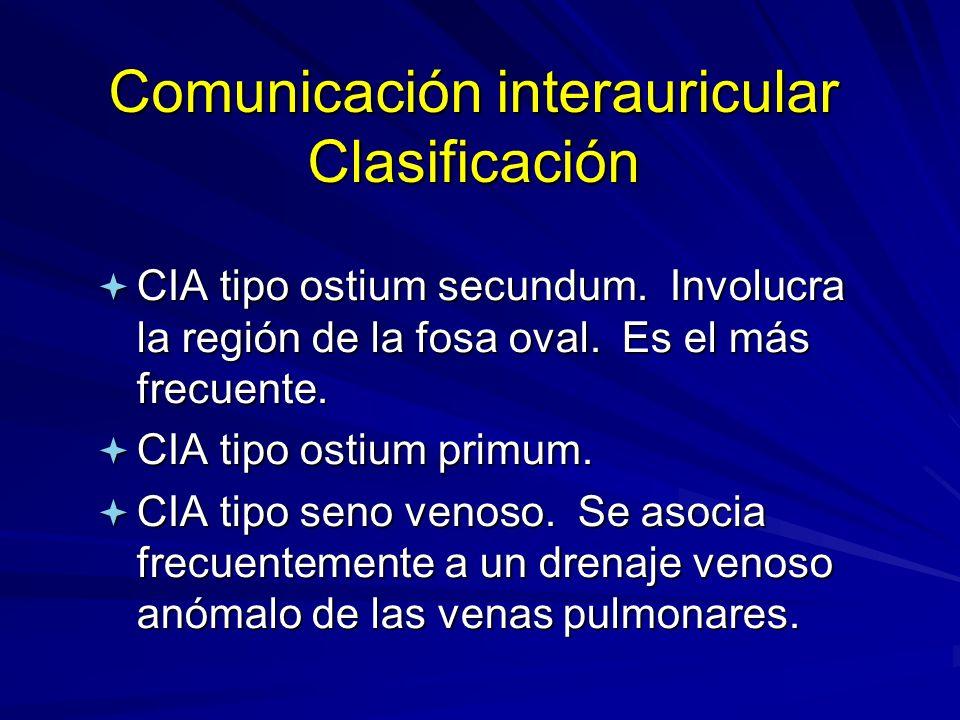 Comunicación interauricular Clasificación