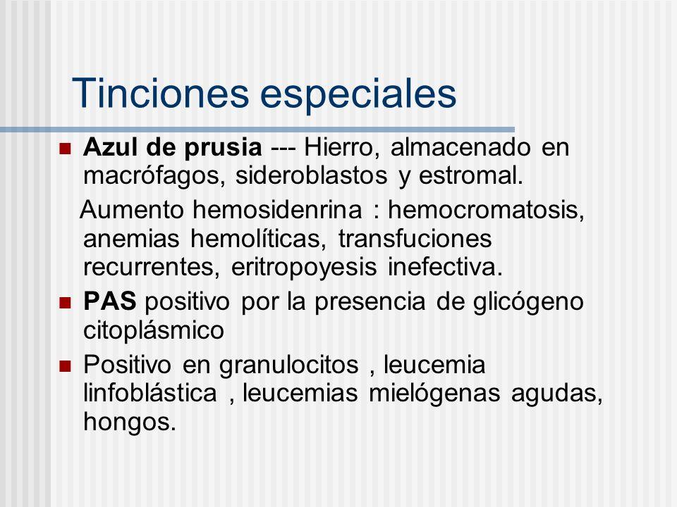 Tinciones especiales Azul de prusia --- Hierro, almacenado en macrófagos, sideroblastos y estromal.