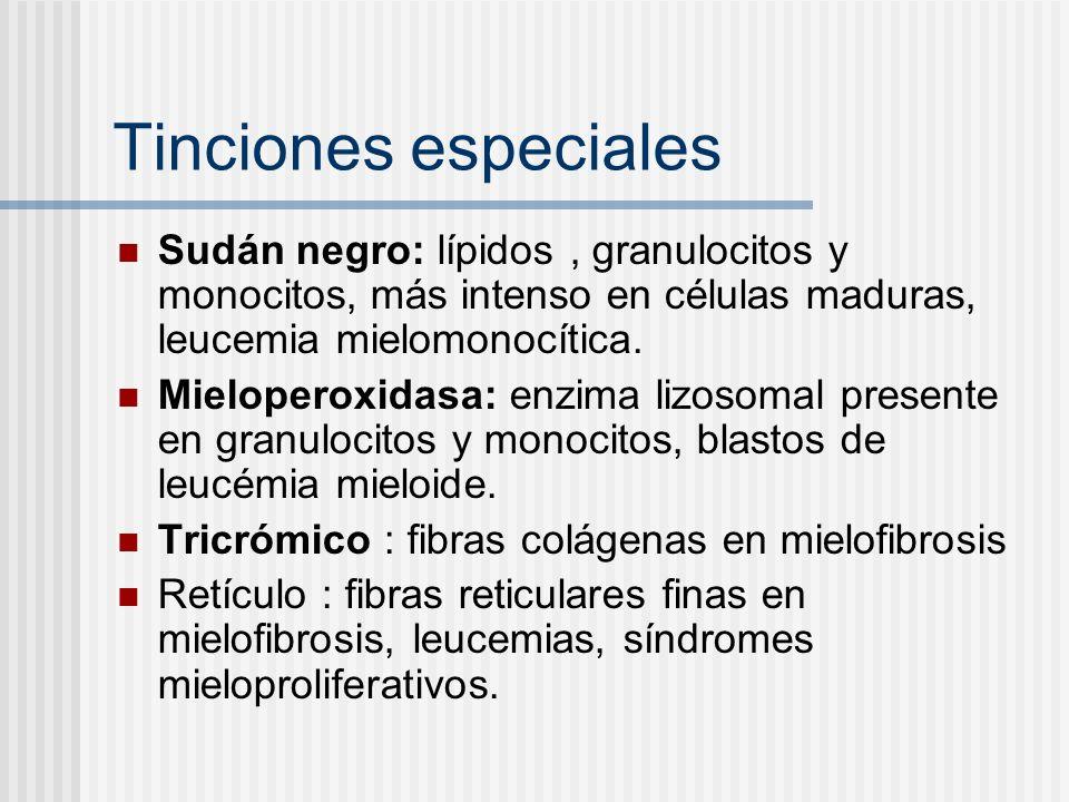 Tinciones especiales Sudán negro: lípidos , granulocitos y monocitos, más intenso en células maduras, leucemia mielomonocítica.