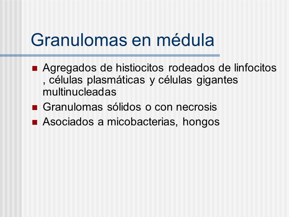 Granulomas en médulaAgregados de histiocitos rodeados de linfocitos , células plasmáticas y células gigantes multinucleadas.
