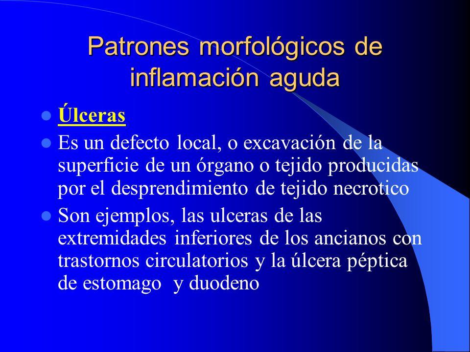 Patrones morfológicos de inflamación aguda