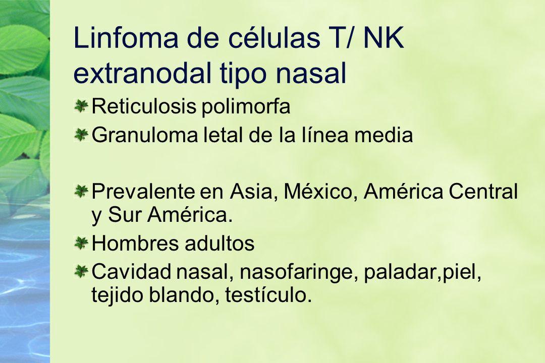 Linfoma de células T/ NK extranodal tipo nasal