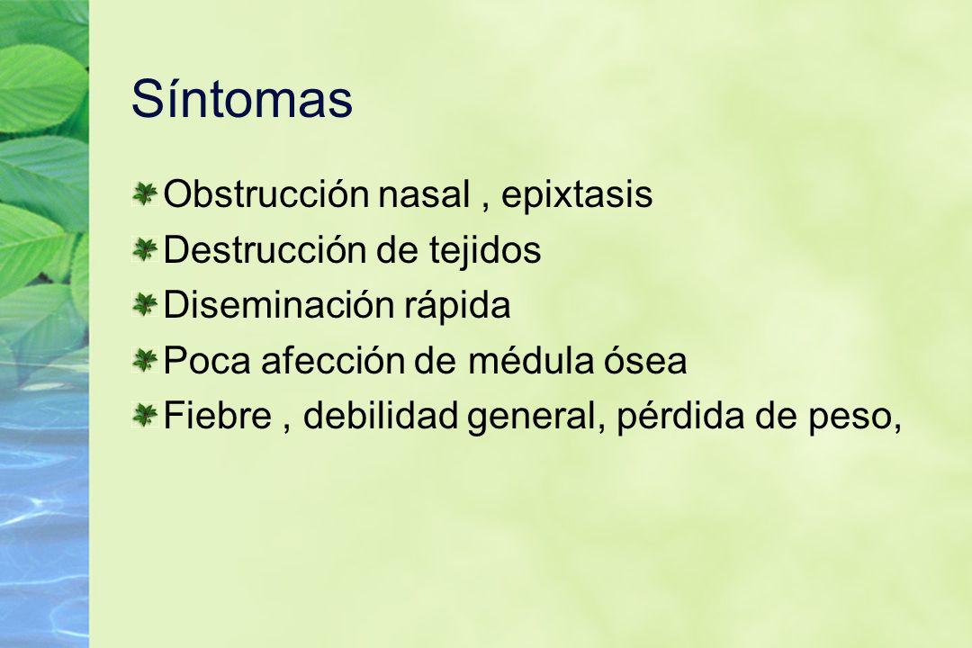 Síntomas Obstrucción nasal , epixtasis Destrucción de tejidos