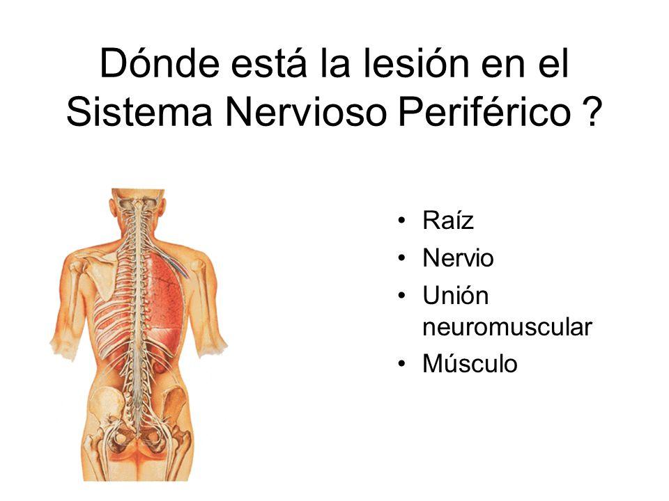 Dónde está la lesión en el Sistema Nervioso Periférico