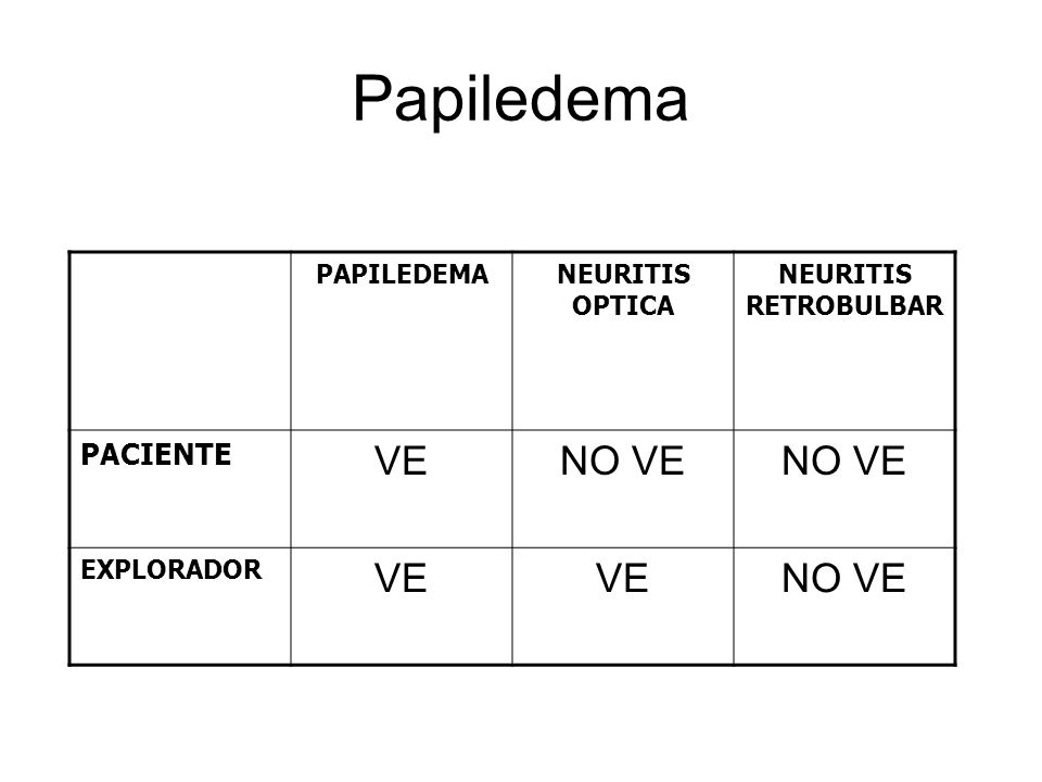 Papiledema VE NO VE PACIENTE PAPILEDEMA NEURITIS OPTICA