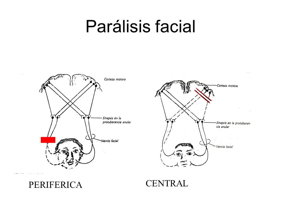 Parálisis facial CENTRAL PERIFERICA