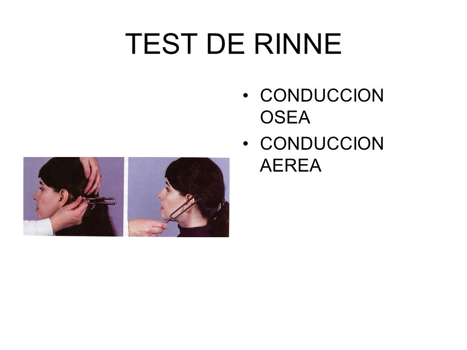 TEST DE RINNE CONDUCCION OSEA CONDUCCION AEREA