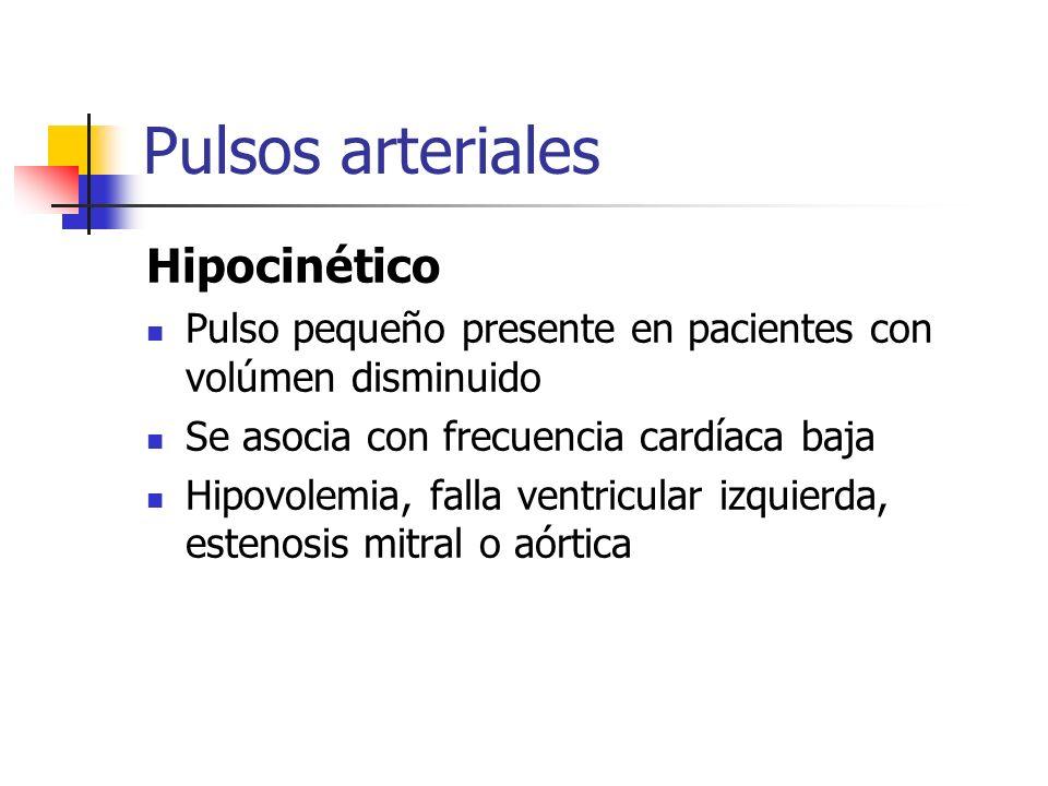 Pulsos arteriales Hipocinético