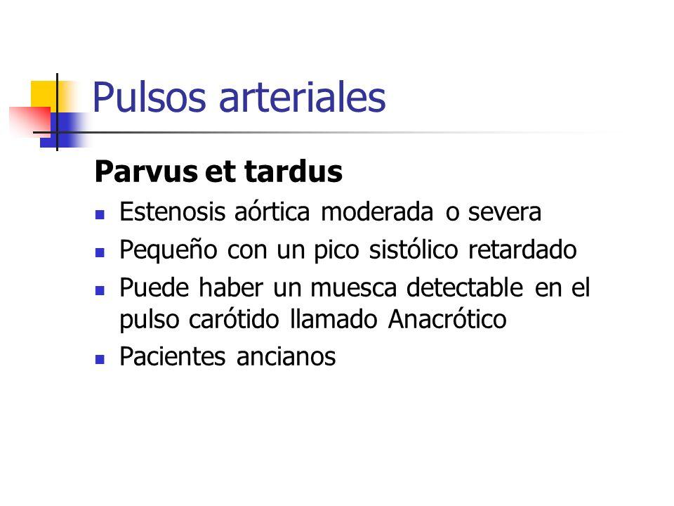 Pulsos arteriales Parvus et tardus Estenosis aórtica moderada o severa