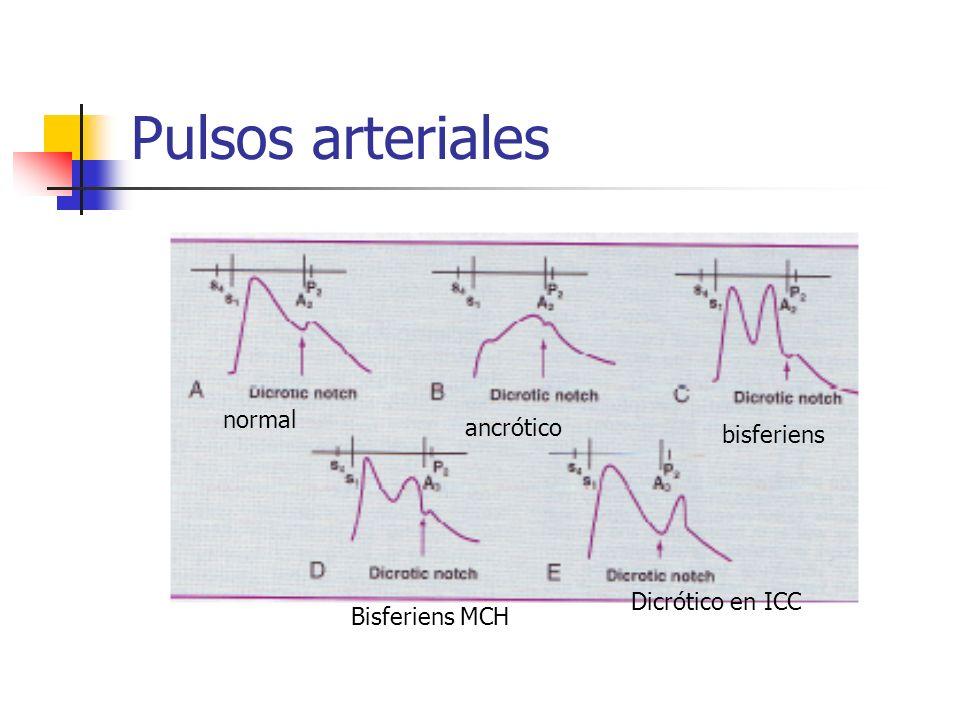 Pulsos arteriales normal ancrótico bisferiens Dicrótico en ICC