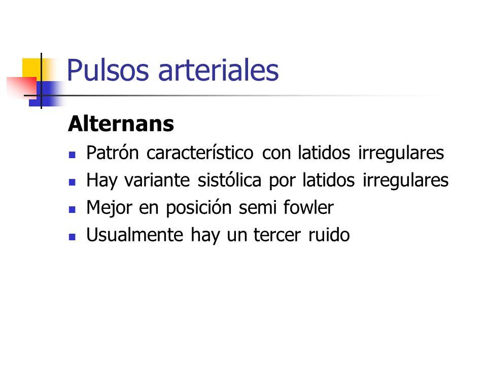 Pulsos arteriales Alternans