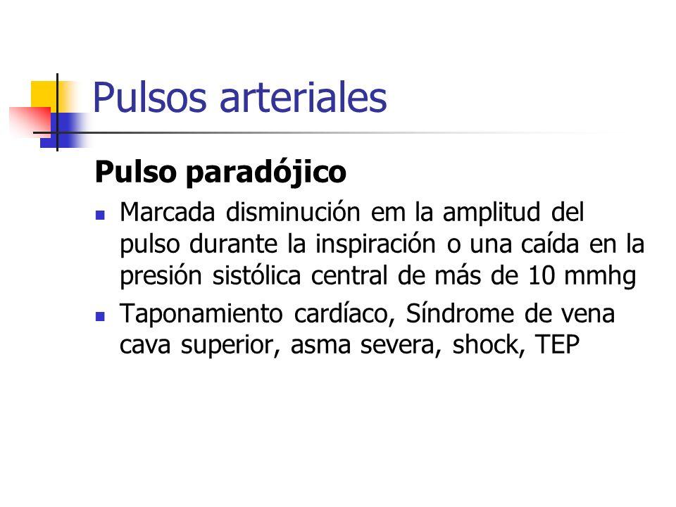 Pulsos arteriales Pulso paradójico