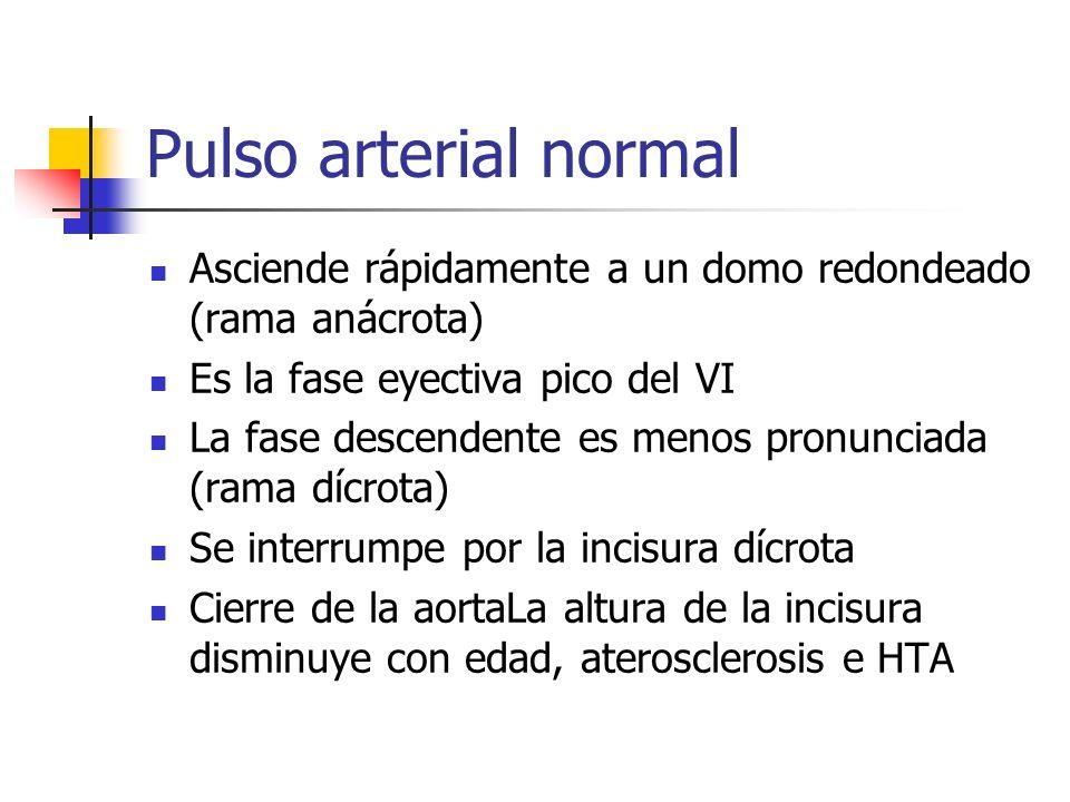 Pulso arterial normal Asciende rápidamente a un domo redondeado (rama anácrota) Es la fase eyectiva pico del VI.
