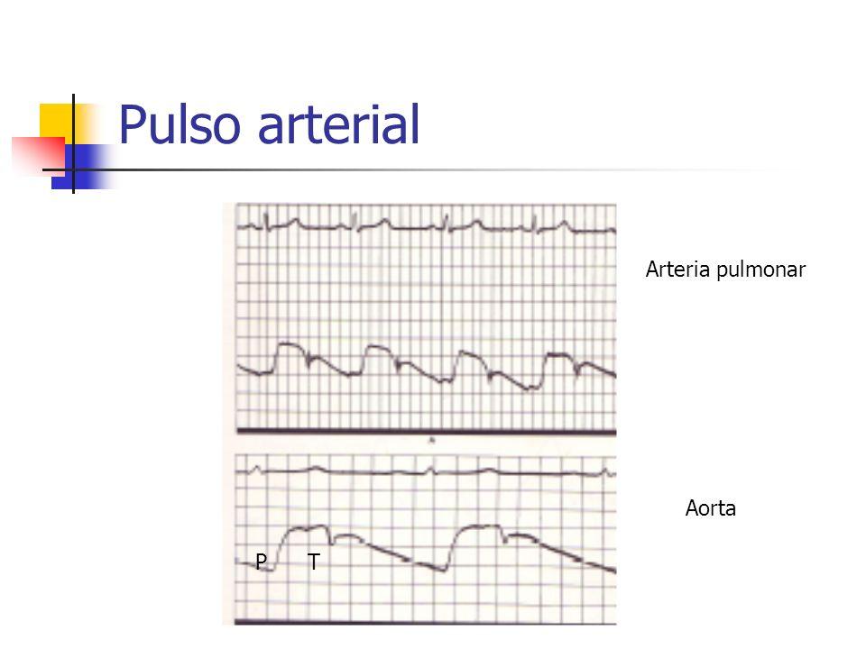 Pulso arterial Arteria pulmonar Aorta P T