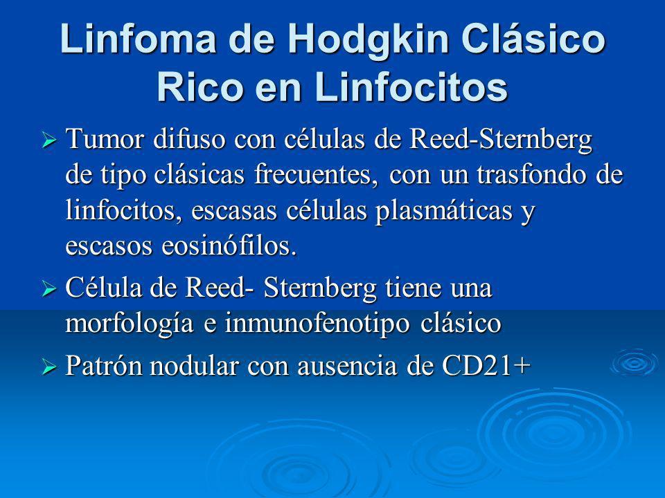 Linfoma de Hodgkin Clásico Rico en Linfocitos