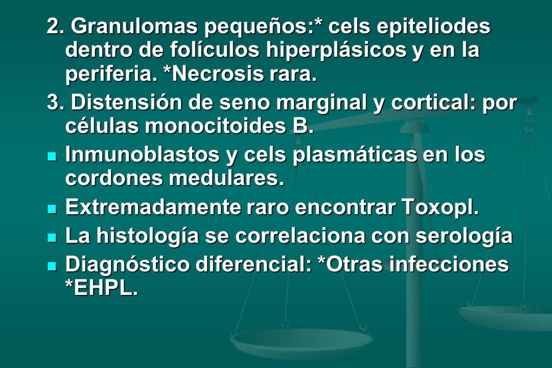2. Granulomas pequeños:* cels epiteliodes dentro de folículos hiperplásicos y en la periferia. *Necrosis rara.