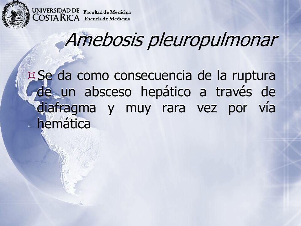 Amebosis pleuropulmonar