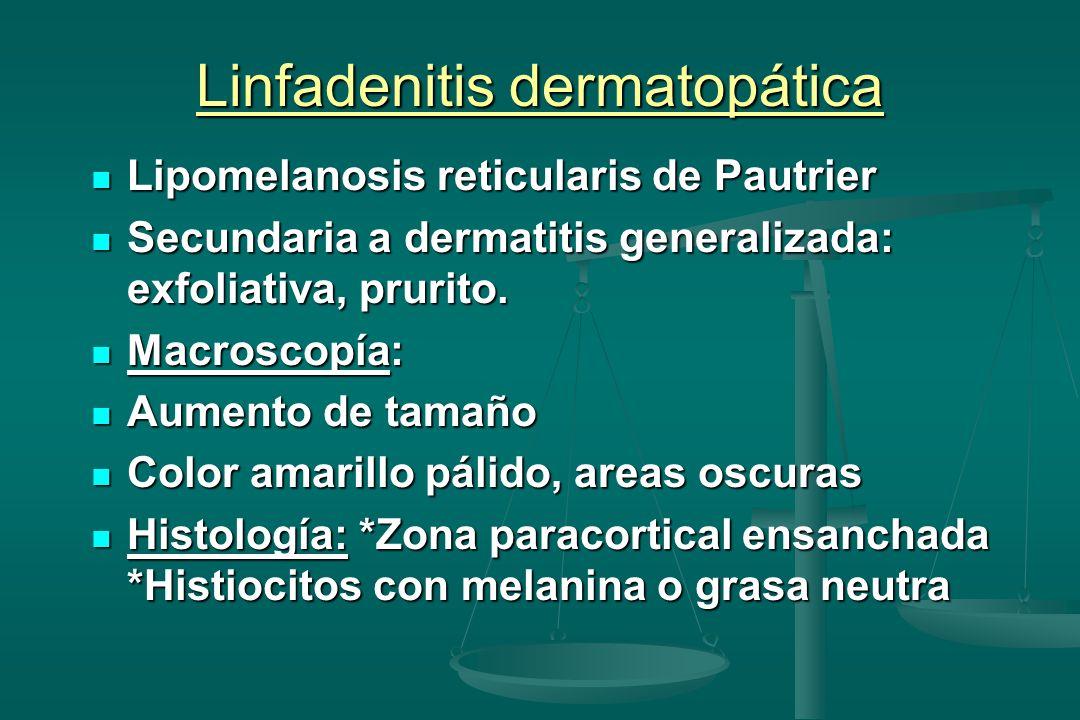 Linfadenitis dermatopática