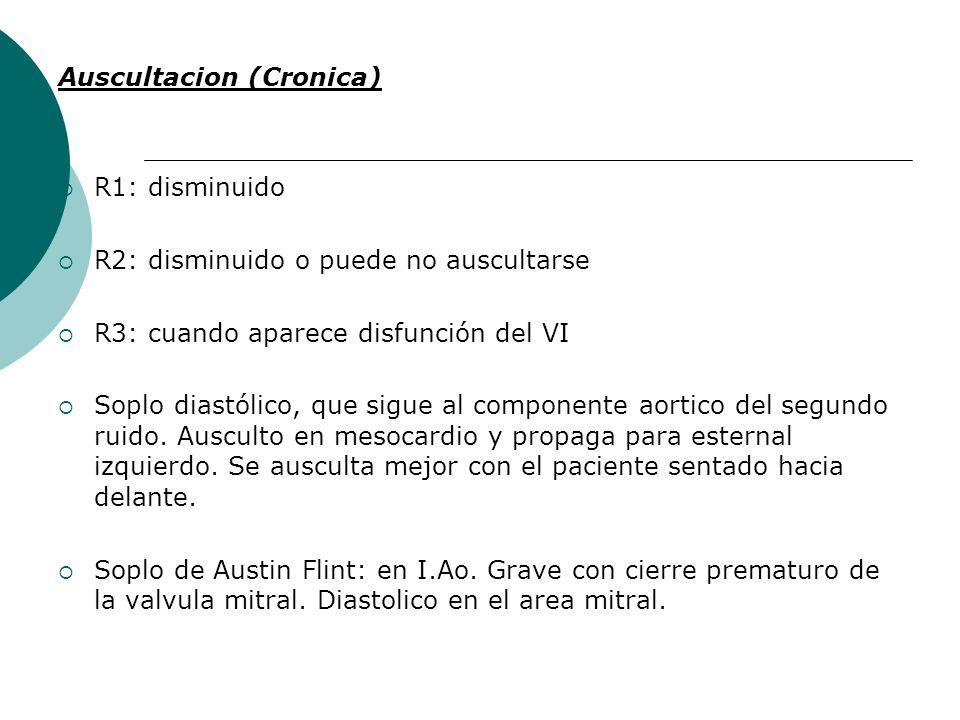 Auscultacion (Cronica)