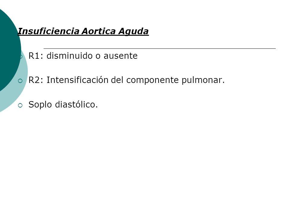 Insuficiencia Aortica Aguda