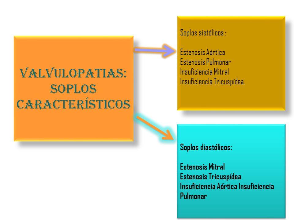 Valvulopatias: Soplos característicos