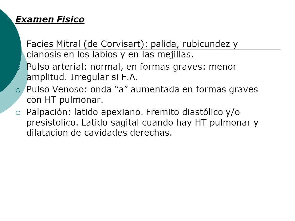 Examen Fisico Facies Mitral (de Corvisart): palida, rubicundez y cianosis en los labios y en las mejillas.