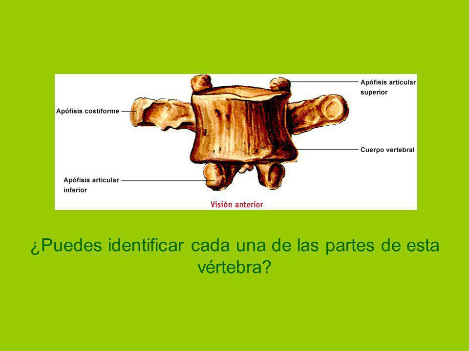 ¿Puedes identificar cada una de las partes de esta vértebra