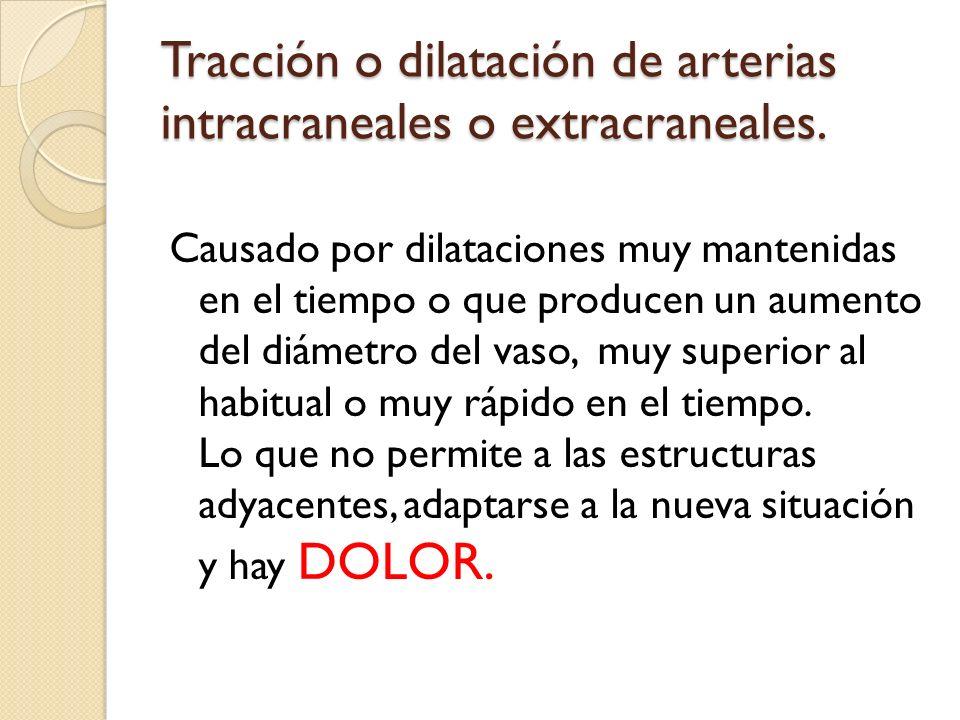 Tracción o dilatación de arterias intracraneales o extracraneales.
