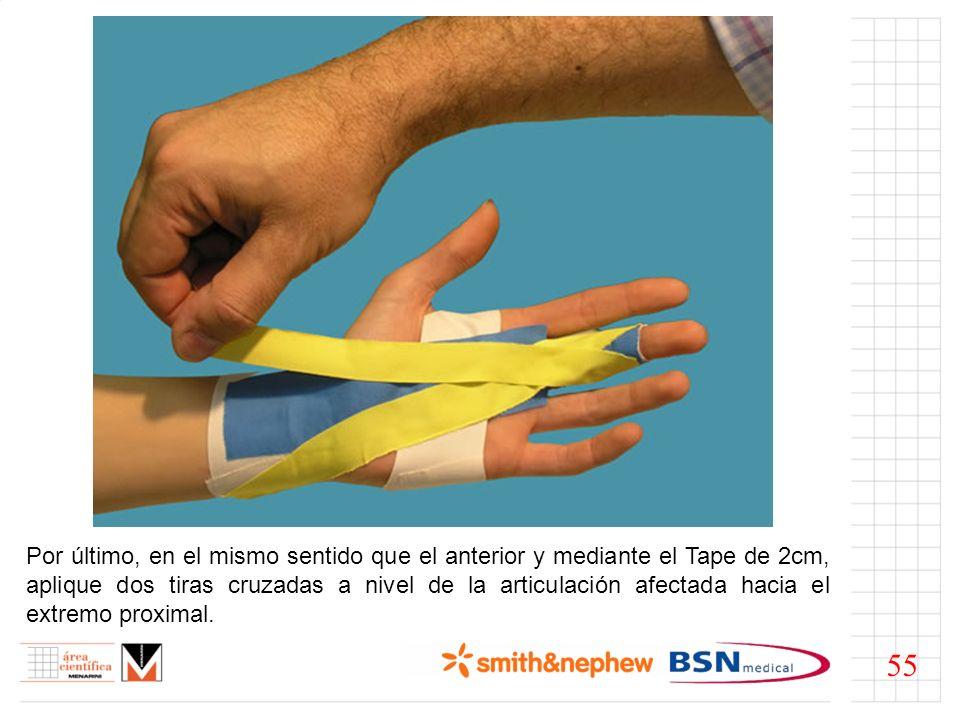 Por último, en el mismo sentido que el anterior y mediante el Tape de 2cm, aplique dos tiras cruzadas a nivel de la articulación afectada hacia el extremo proximal.
